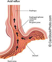 medical illustration of the effects of the acid reflux