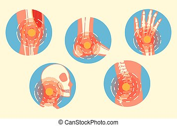 arthritis joint pain syndrome set