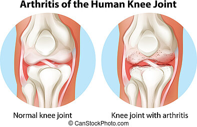 Illustration of an arthritis of the human knee joint on a white background