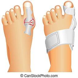 Big toe injury. Support for foot or big toe injury. Hallufix Hallux Valgus Splint. Bunion, Hallux valgus, popularly known as Bunion.