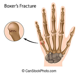 Boxer's fracture, eps8