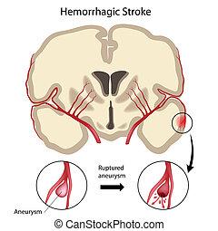Brain hemorrhagic stroke, eps10