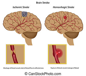 2 types of brain stroke and their causes