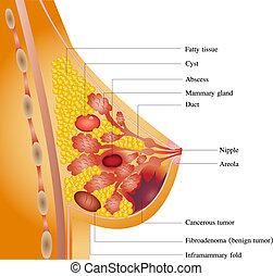 Breast cancer illustration.