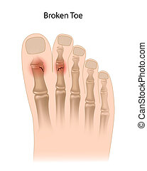 Toe fractures