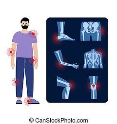 Bursitis icons set