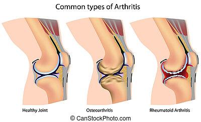 Knee anatomy with arthritis, eps8