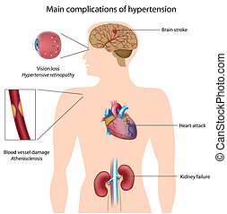 Diagram showing affected organs in persistent hypertension