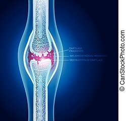 Damaged joint illustration, abstract x ray design.