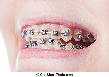 dental steel brackets on teeth close up during orthodontic treatment