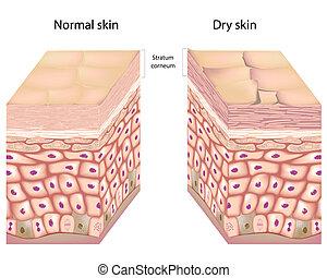 Anatomy of human epidermis with stratum corneum flaking off in dry skin