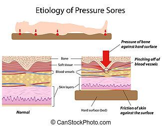 Etiology of pressure sores, eps8