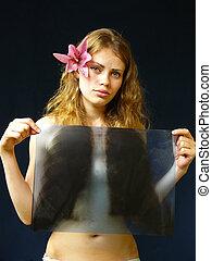 girl with rengenom in hands