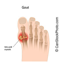 inflammatory arthritis of the joint caused by urate crystals