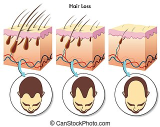 medical illustration of the effects of the hair loss