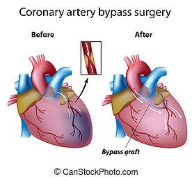 Heart bypass surgery, eps8