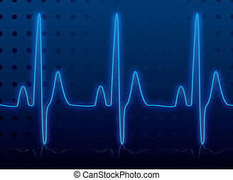 Medical heatbeat monitor in blue and black or an images that could be used for network diagnosis
