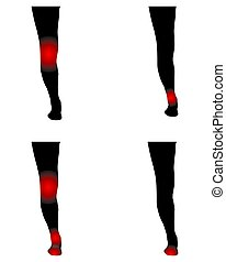 Human legs with pain points