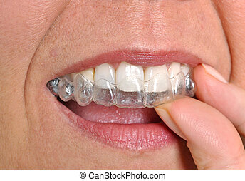 Woman putting in her invisible braces