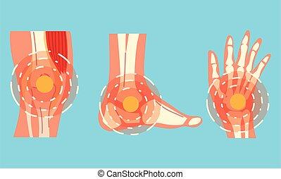 joint pain in human bones