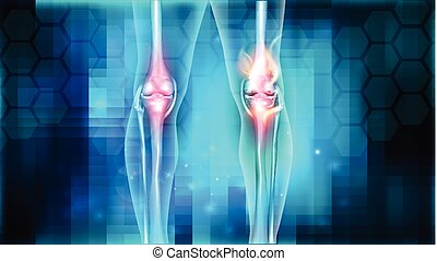 Joint problems bright abstract design, burning damaged knee