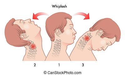 medical illustration of the dynamics of the whiplash injury