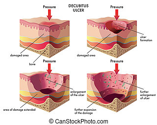 medical illustration of the effects of the decubitus ulcer