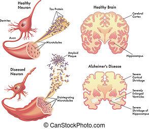 medical illustration of the symptoms of Alzheimer's disease