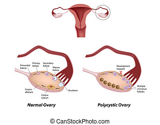 Normal ovary and Polycystic ovary syndrome, eps8