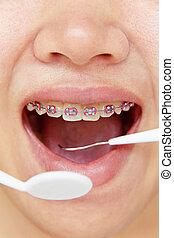 orthodontics, dental concept