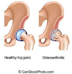 Osteoarthritis of hip joint, eps8