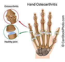 Osteoarthritis of the hand, eps8