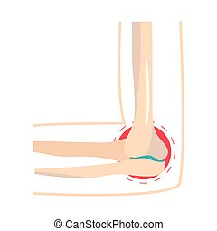 rheumatism joint pain human disorder