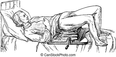 Subject operated on the device for lithotripsy, vintage engraved illustration. Usual Medicine Dictionary - Paul Labarthe - 1885.