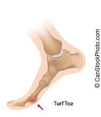 sprain of the big toe joint, a sport injury