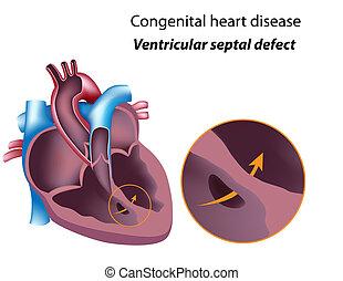 Congenital heart disease: ventricular septal defect