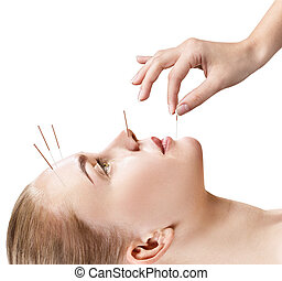 Woman undergoing acupuncture treatment.