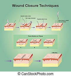 A wound is a type of injury which happens relatively quickly in which skin is torn, cut, or punctured (an open wound), or where blunt force trauma causes a contusion.